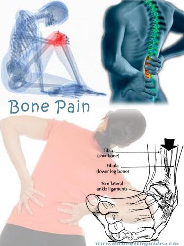 Bone pain 1