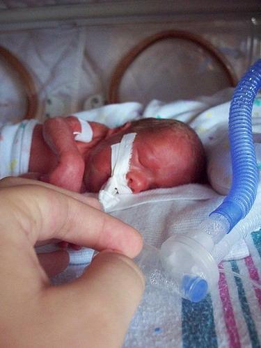 Premature infant